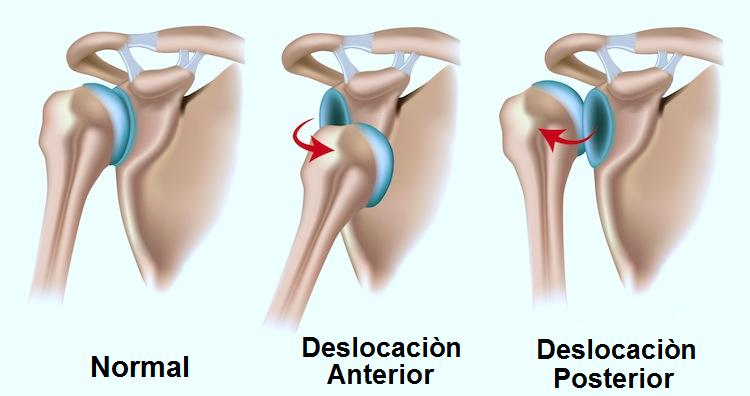 lesiones en el padel dislocacion-de-hombro