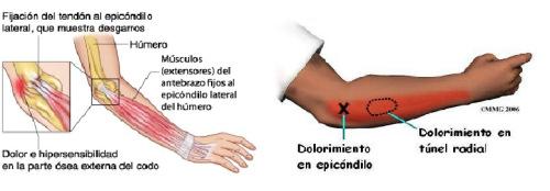 lesiones en el padel epicondilitis