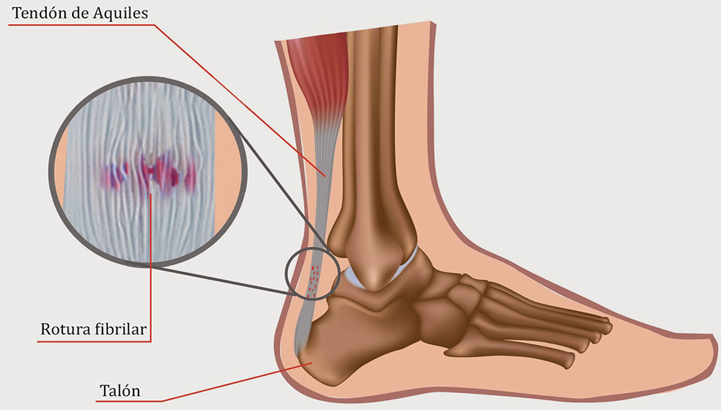 Lesiones en pádel  Tendinitis en el tendón de Aquiles 2e9e79c986dd