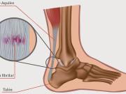 Tendinitis en el tendón de Aquiles